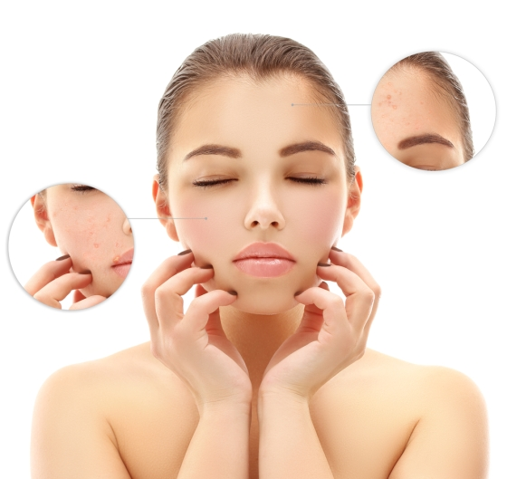 Showing Details of Pores on Woman's Face