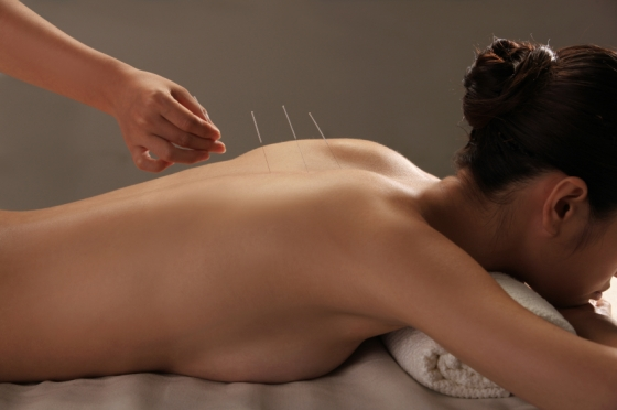 Doctor putting acupuncture needles on woman's shoulder,close-up