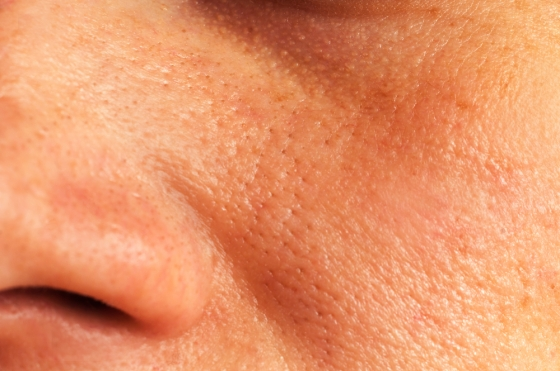 Closeup of the face of a woman who has large pores and oily skin.