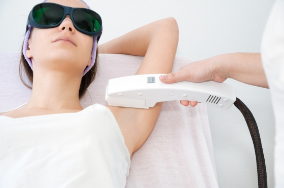 Woman getting a laser hair removal treatmentq