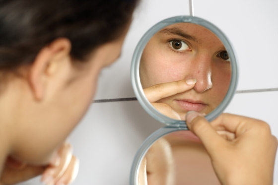 Woman examining her breakout in the mirror