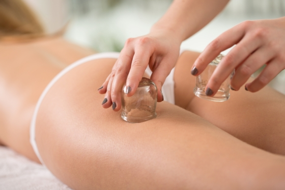 Woman getting a cupping therapy to deal with cellulite